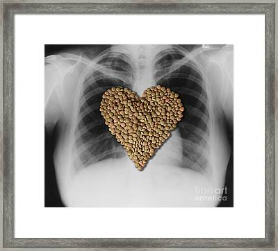 Lentils, Heart-healthy Food Framed Print by Gwen Shockey