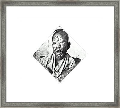 Leprosy Patient Framed Print by National Library Of Medicine
