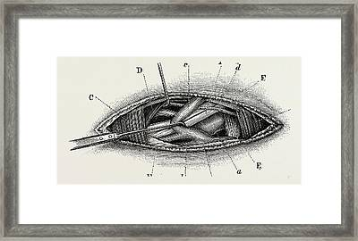 Ligature Of The Right Subclavian Ernird Part Framed Print by Litz Collection