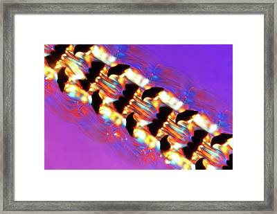Limpet Tongue Framed Print by Steve Lowry
