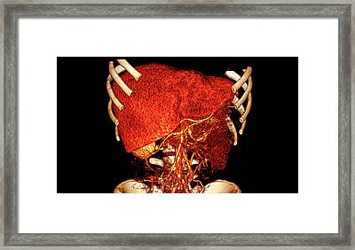 Liver Framed Print by Antoine Rosset/science Photo Library