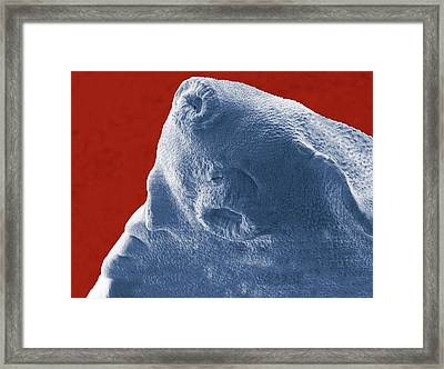 Liver Fluke Framed Print by Thierry Berrod, Mona Lisa Production