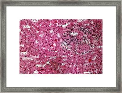 Liver Sarcoidosis Framed Print