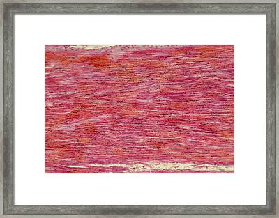Lm Of Section Through Normal Human Sinew (tendon) Framed Print by Astrid & Hanns-frieder Michler/science Photo Library