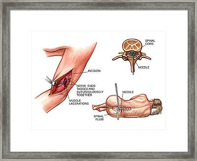 Lumbar Puncture And Radial Nerve Surgery Framed Print by John T. Alesi