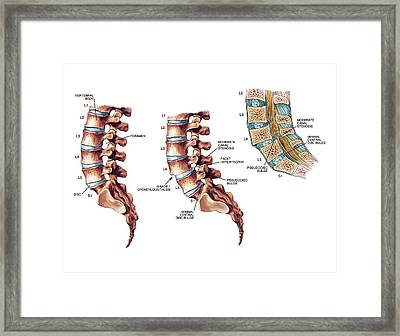 Lumbar Spondylolisthesis Framed Print by John T. Alesi