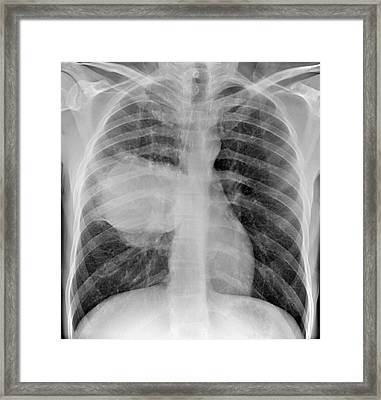 Lung Cancer Framed Print