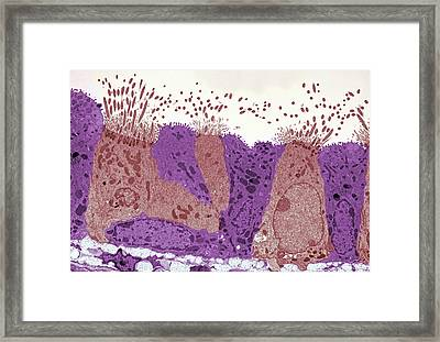 Lung Epithelial Layer Framed Print