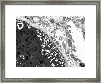 Lupus Affected Kidney Framed Print by R. Bick, B. Poindexter, P. Navarro