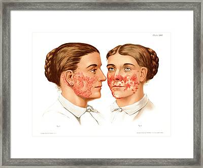Lupus Erythematosus And Vulgaris Framed Print by Us National Library Of Medicine/science Photo Library