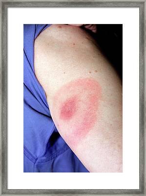 Lyme Disease Rash Framed Print