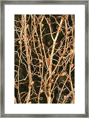 Macrophoto Of Root Nodules On White Framed Print by Dr. Jeremy Burgess
