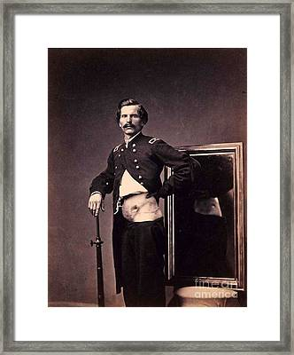 Major H.l. Barnum - Civil War Wound Framed Print by Pg Reproductions