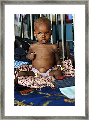 Malnourished Child Framed Print by Matthew Oldfield
