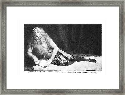 Man With Hypertrichosis Framed Print by American Philosophical Society