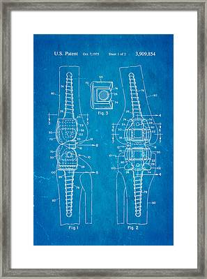 Martinez Knee Implant Prosthesis Patent Art 1974 Blueprint Framed Print by Ian Monk