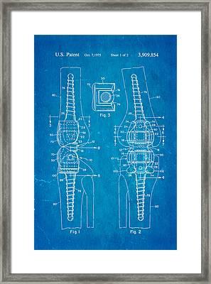 Martinez Knee Implant Prosthesis Patent Art 1974 Blueprint Framed Print