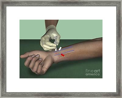 Median Nerve Wrist Block, Artwork Framed Print by D & L Graphics