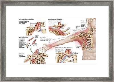Medical Illustration Detailing Thoracic Framed Print