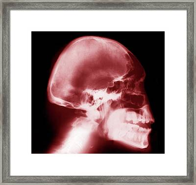 Microcephaly Framed Print by Zephyr