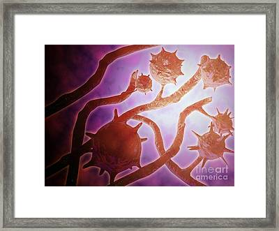 Microscopic View Of Histoplasmosis Framed Print by Stocktrek Images