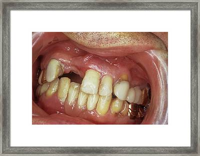 Missing Front Teeth Framed Print by Dr. Portier/cnri