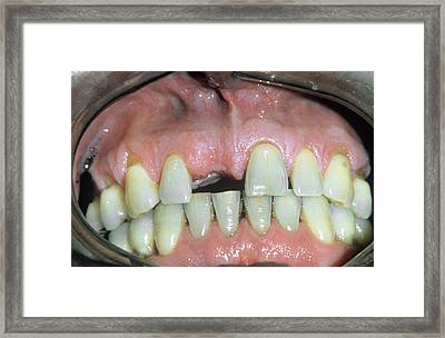 Missing Front Tooth Framed Print by Dr. M. Gaillard/cnri