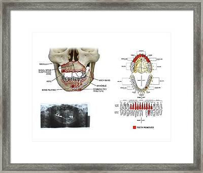 Mouth And Facial Fractures Surgery Framed Print by John T. Alesi