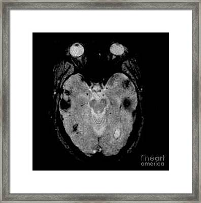 Mri Of Amyloid Angiopathy Framed Print by Living Art Enterprises