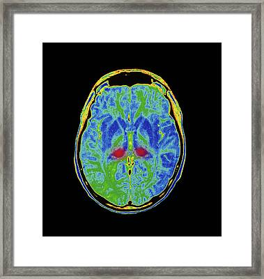 Mri Scan Of Human Brain Diseased With Cjd Framed Print by Simon Fraser/royal Victoria Infirmary, Newcastle Upon Tyne/science Photo Library