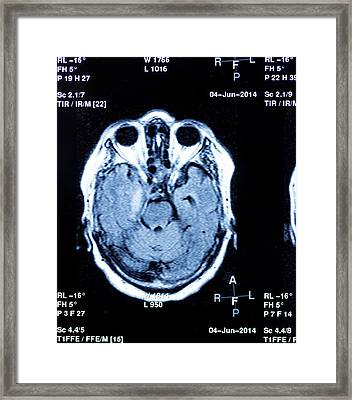 Mri Scan Of Human Head Framed Print