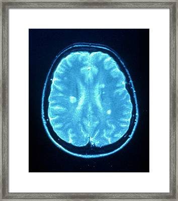 Multiple Sclerosis Framed Print by Simon Fraser/neuroradiology Department, Newcastle General Hospital/science Photo Library
