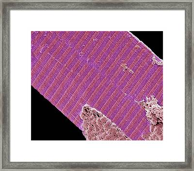 Muscle Fibre Framed Print