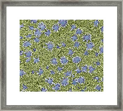 Nasal Lining, Sem Framed Print by Science Photo Library