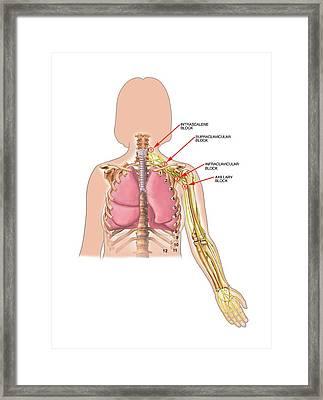 Neck And Shoulder Nerve Blocks Framed Print by John T. Alesi