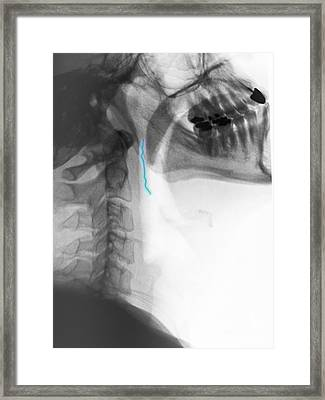 Neck X-ray Of Swallowed Paper Clip Framed Print by Scott Camazine
