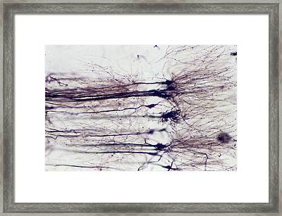 Nerve Cells Framed Print by Overseas/collection Cnri/spl