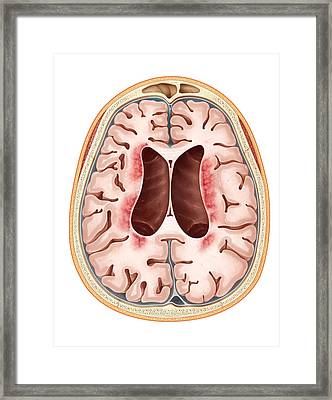 Neuronal Ceroid-lipofuscinosis Framed Print by Evan Oto