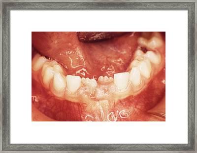 New Teeth Erupting Framed Print by Dr. Portier - Cnri