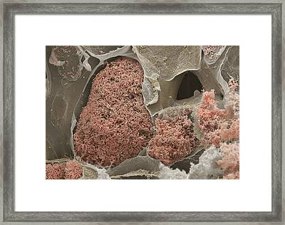 Nitrogen-fixing Bacteria Framed Print by Power And Syred