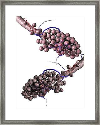 Normal And Emphysemic Alveoli Framed Print by Gunilla Elam