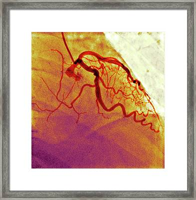 Normal Blood Vessels Framed Print