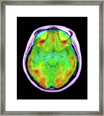 Normal Brain Blood Flow Framed Print
