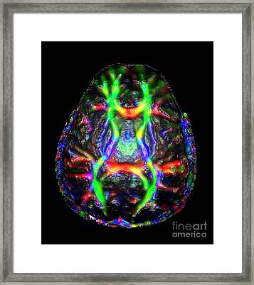 Normal Brain Diffusion Tractography Framed Print