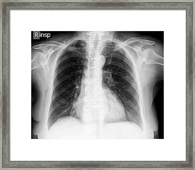 Normal Chest X-ray Framed Print by Photostock-israel