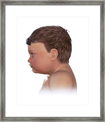 Normal Head Size In Newborn Framed Print by Claus Lunau/science Photo Library