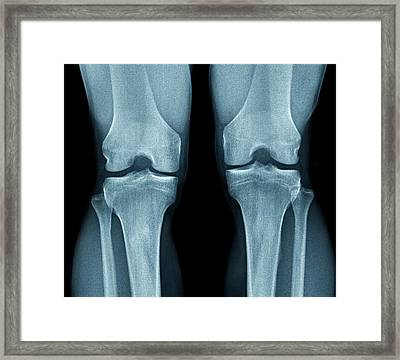 Normal Knees Framed Print