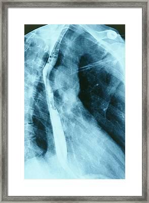 Normal Oesophagus Framed Print by St Bartholomew Hospital
