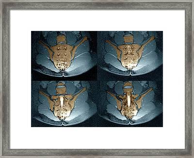 Normal Sacrum Framed Print by Zephyr