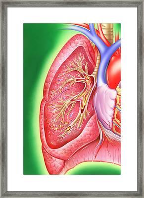 Obstructive Lung Disease Framed Print